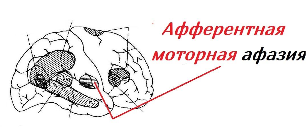 afferentnaya-motornaya-afaziya