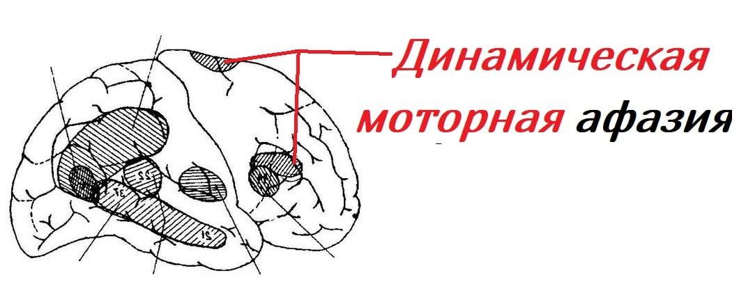 dinamitcheskaya-motornaya-afaziya