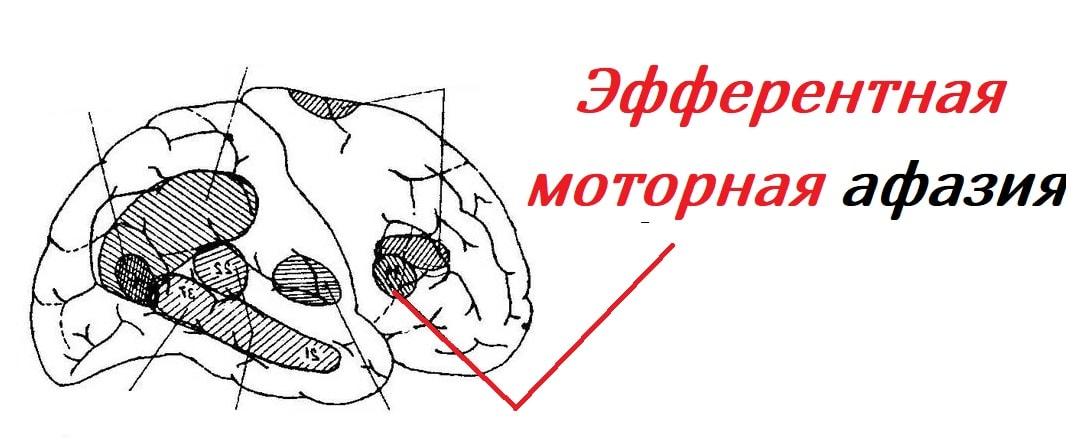 efferentnaya-motornaya-afaziya