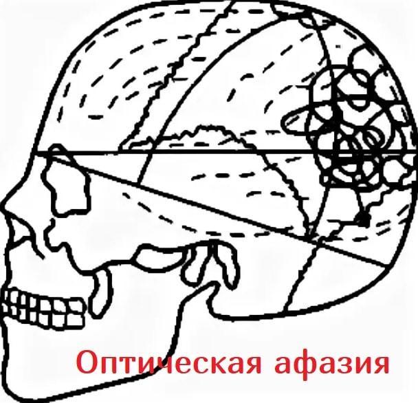 Оптическая амнестическая афазия